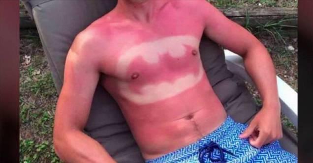 54-epic-and-painful-sunburns-u2